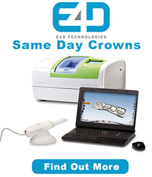 Same-Day Crowns image, link to Same-Day Crown Information
